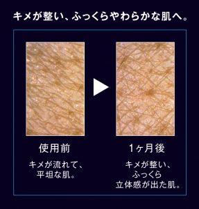リリースP1-3肌_before_after